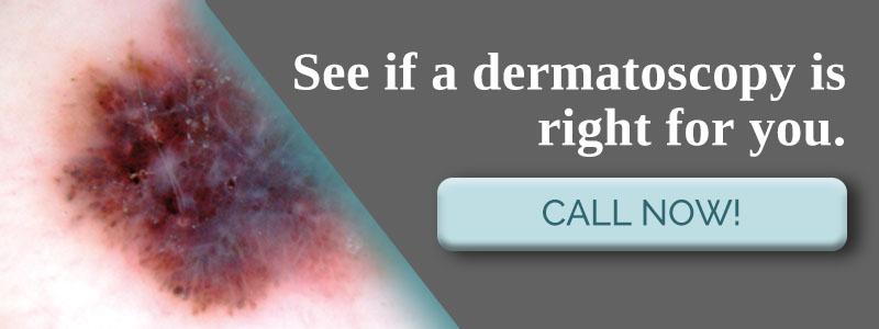 CTA_Dermatoscopy